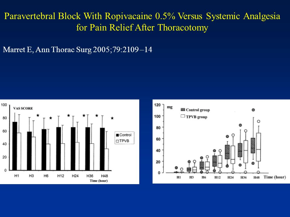 Paravertebral Block With Ropivacaine 0.5% Versus Systemic Analgesia for Pain Relief After Thoracotomy Marret E, Ann Thorac Surg 2005;79:2109 –14