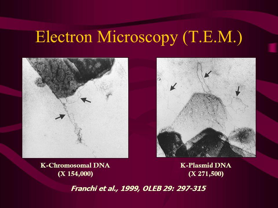 Electron Microscopy (T.E.M.) K-Chromosomal DNA (X 154,000) K-Plasmid DNA (X 271,500) Franchi et al., 1999, OLEB 29: 297-315