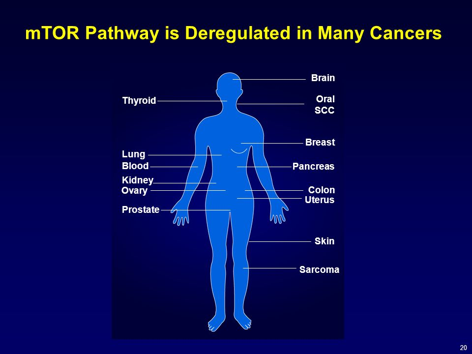 20 mTOR Pathway is Deregulated in Many Cancers Brain Oral SCC Breast Pancreas Colon Uterus Prostate Skin Ovary Blood Lung Thyroid Sarcoma Kidney