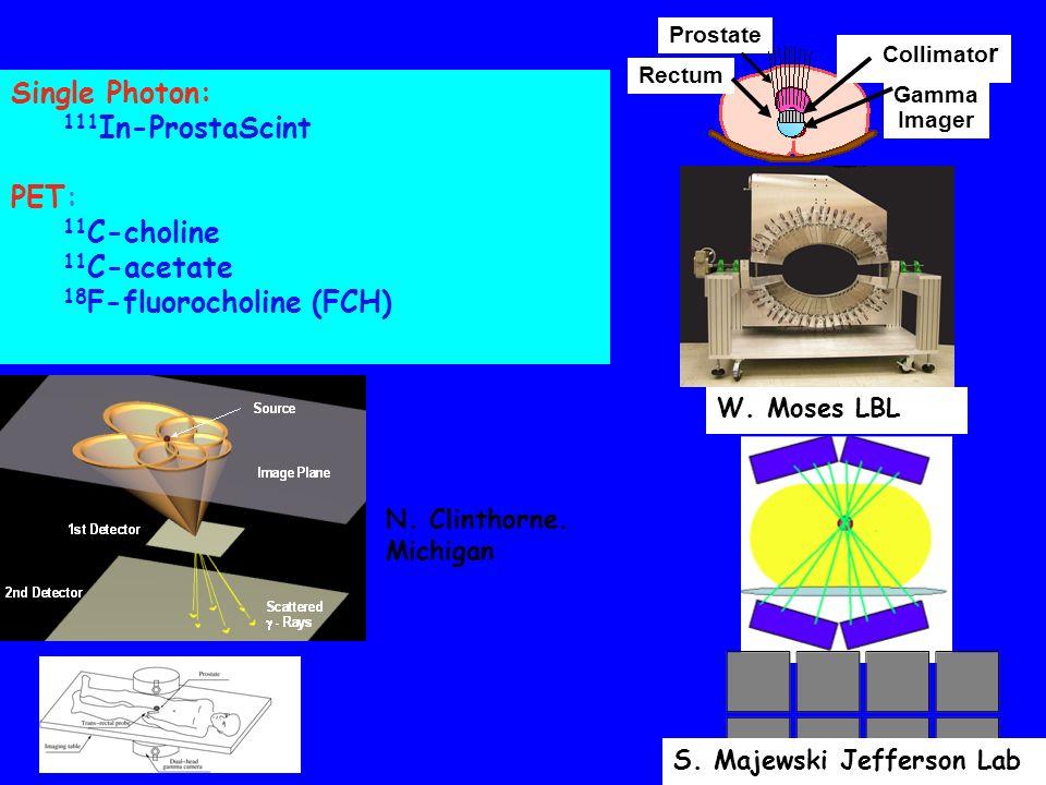 Single Photon: 111 In-ProstaScint PET: 11 C-choline 11 C-acetate 18 F-fluorocholine (FCH) Prostate Rectum Collimato r Gamma Imager S. Majewski Jeffers