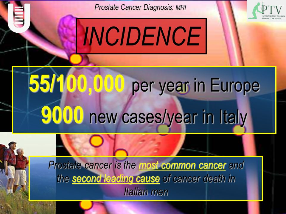 55/100,000 per year in Europe 9000 new cases/year in Italy Prostate cancer is the most common cancer and the second leading cause of cancer death in I