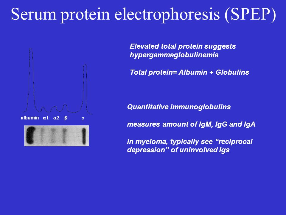 Serum protein electrophoresis (SPEP) albumin Elevated total protein suggests hypergammaglobulinemia Total protein= Albumin + Globulins Quantitative im