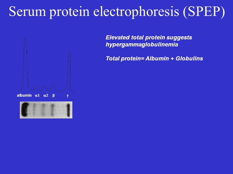 Serum protein electrophoresis (SPEP) albumin Elevated total protein suggests hypergammaglobulinemia Total protein= Albumin + Globulins