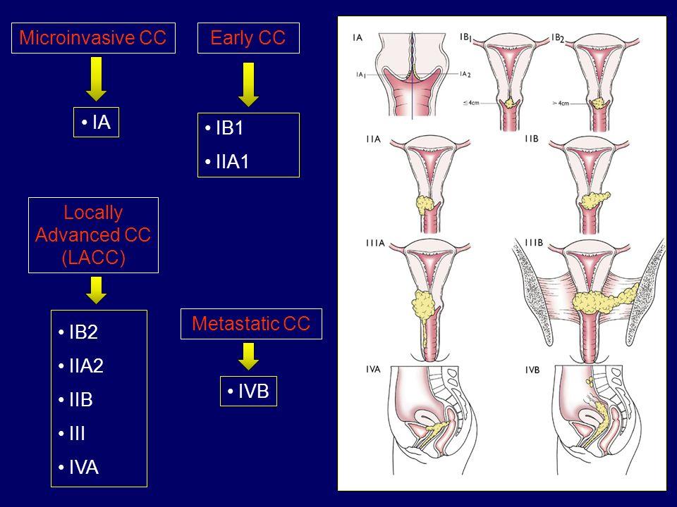 Microinvasive CC IA Early CC IB1 IIA1 Locally Advanced CC (LACC) IB2 IIA2 IIB III IVA Metastatic CC IVB