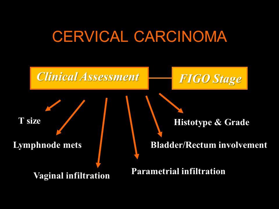 CERVICAL CARCINOMA Clinical Assessment Histotype & Grade Bladder/Rectum involvement Parametrial infiltration FIGO Stage Vaginal infiltration Lymphnode