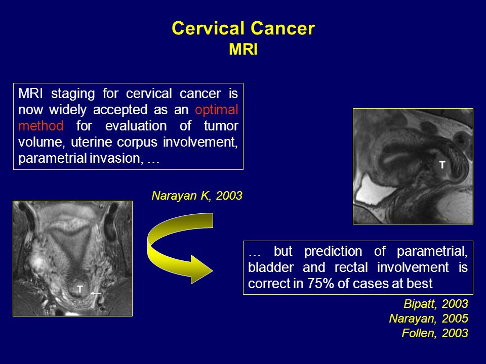 Narayan K, 2003 MRI staging for cervical cancer is now widely accepted as an optimal method for evaluation of tumor volume, uterine corpus involvement