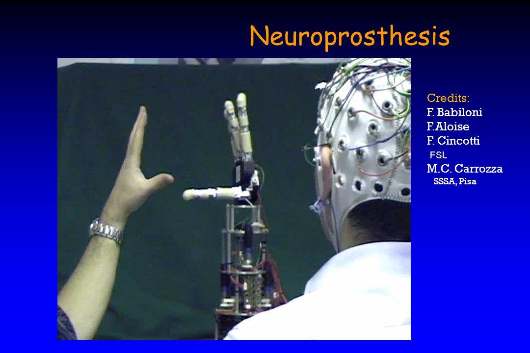 Credits: F. Babiloni F.Aloise F. Cincotti FSL M.C. Carrozza SSSA, Pisa Neuroprosthesis