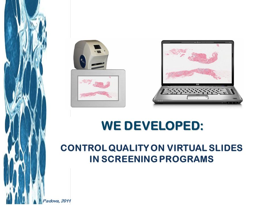External Quality Control is required by Certification Systems for Accreditation and especially in Screening Programs Clinical Pathology Accreditation Laboratory Management System ISO17025 L.R.