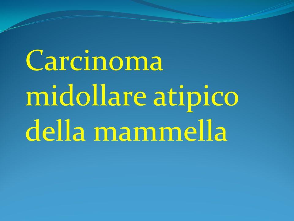 Carcinoma midollare atipico della mammella