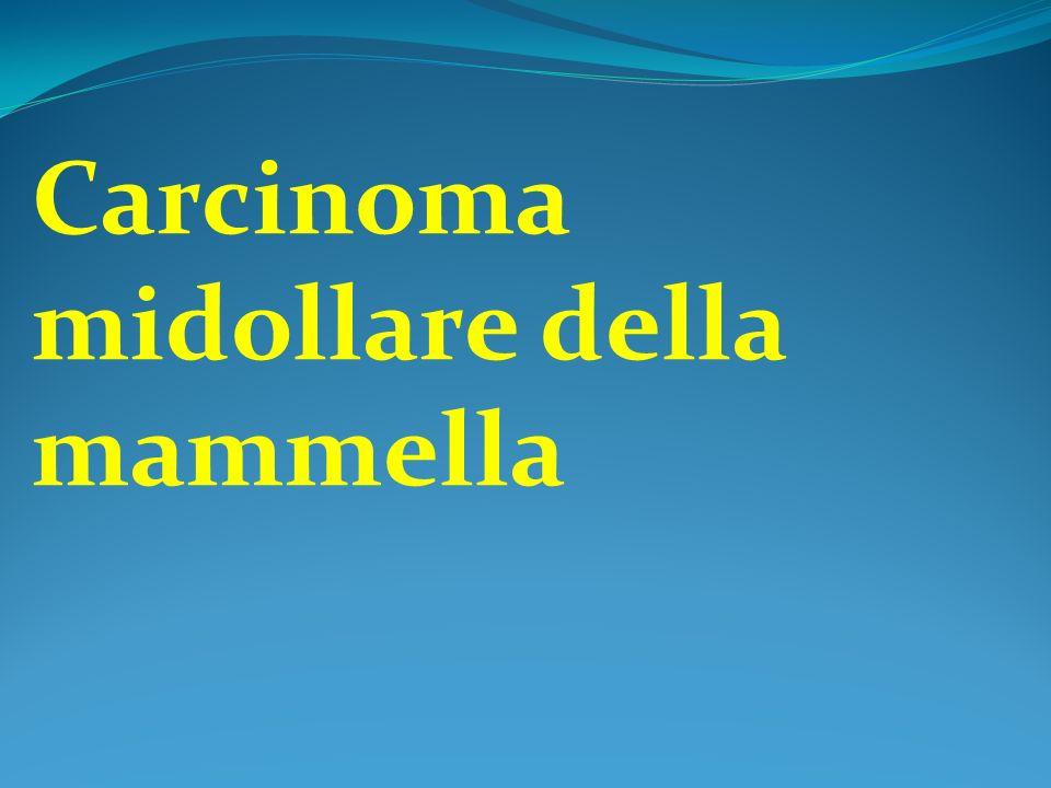 Carcinoma midollare della mammella