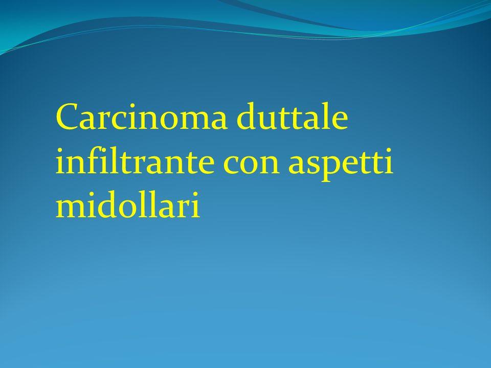 Carcinoma duttale infiltrante con aspetti midollari