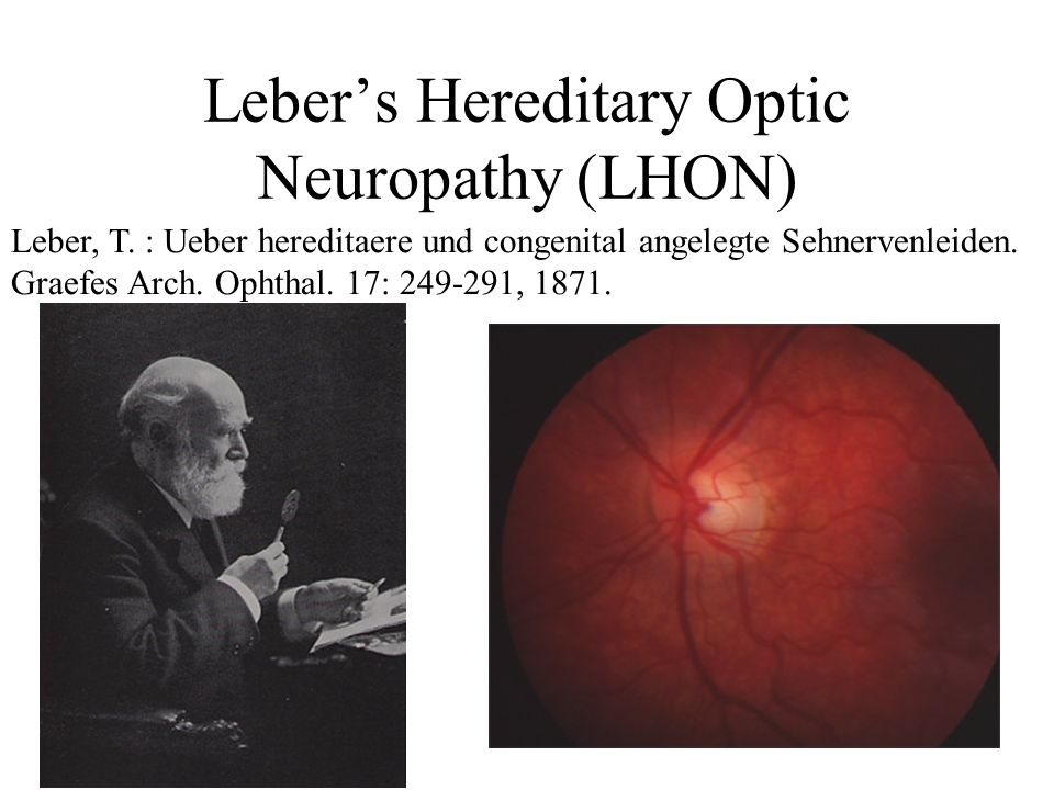 Homoplasmic point mutations e.g. Lebers Hereditary Optic Neuropathy 11778G->A blind healthy