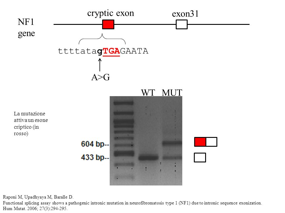 exon31 cryptic exon NF1 gene A>G ttttatagTGAGAATA WTMUT Raponi M, Upadhyaya M, Baralle D. Functional splicing assay shows a pathogenic intronic mutati