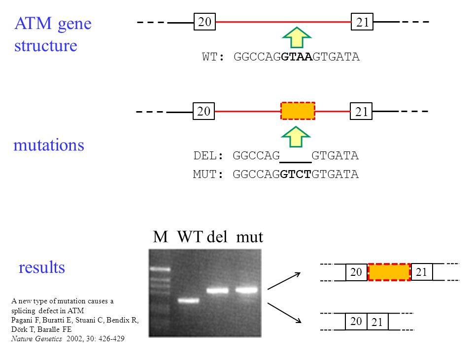 ATM gene structure 20 21 M WT del mut 20 21 20 21 mutations results A new type of mutation causes a splicing defect in ATM Pagani F, Buratti E, Stuani