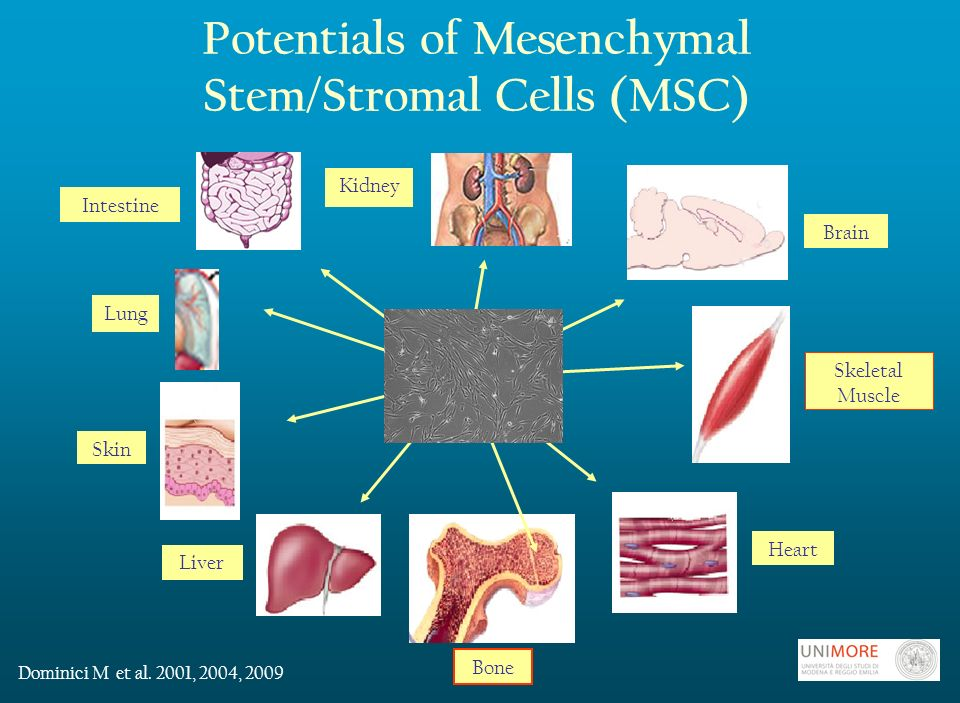 Potentials of Mesenchymal Stem/Stromal Cells (MSC) Lung Skin Liver Heart Skeletal Muscle Brain Intestine Kidney Dominici M et al.