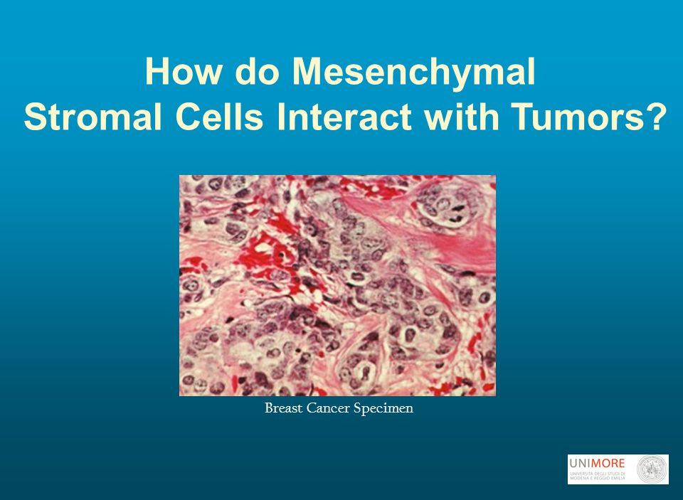 How do Mesenchymal Stromal Cells Interact with Tumors Breast Cancer Specimen