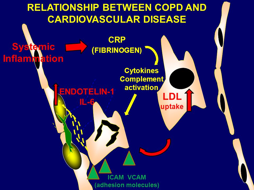 ENDOTELIN-1 IL-6 LDL uptake CRP ( FIBRINOGEN) RELATIONSHIP BETWEEN COPD AND CARDIOVASCULAR DISEASE ICAM VCAM (adhesion molecules) Cytokines Complement