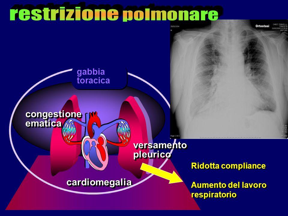 cardiomegaliacardiomegalia congestioneematicacongestioneematica versamentopleuricoversamentopleurico gabbia toracica Ridotta compliance Aumento del la