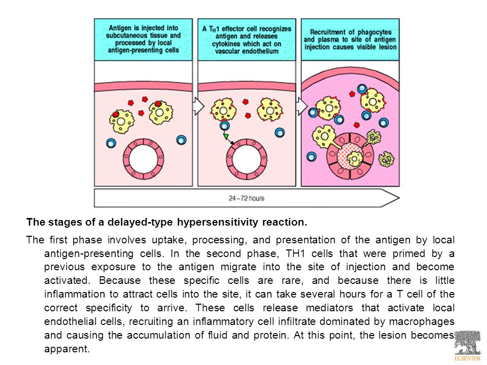 The stages of a delayed-type hypersensitivity reaction. The first phase involves uptake, processing, and presentation of the antigen by local antigen-