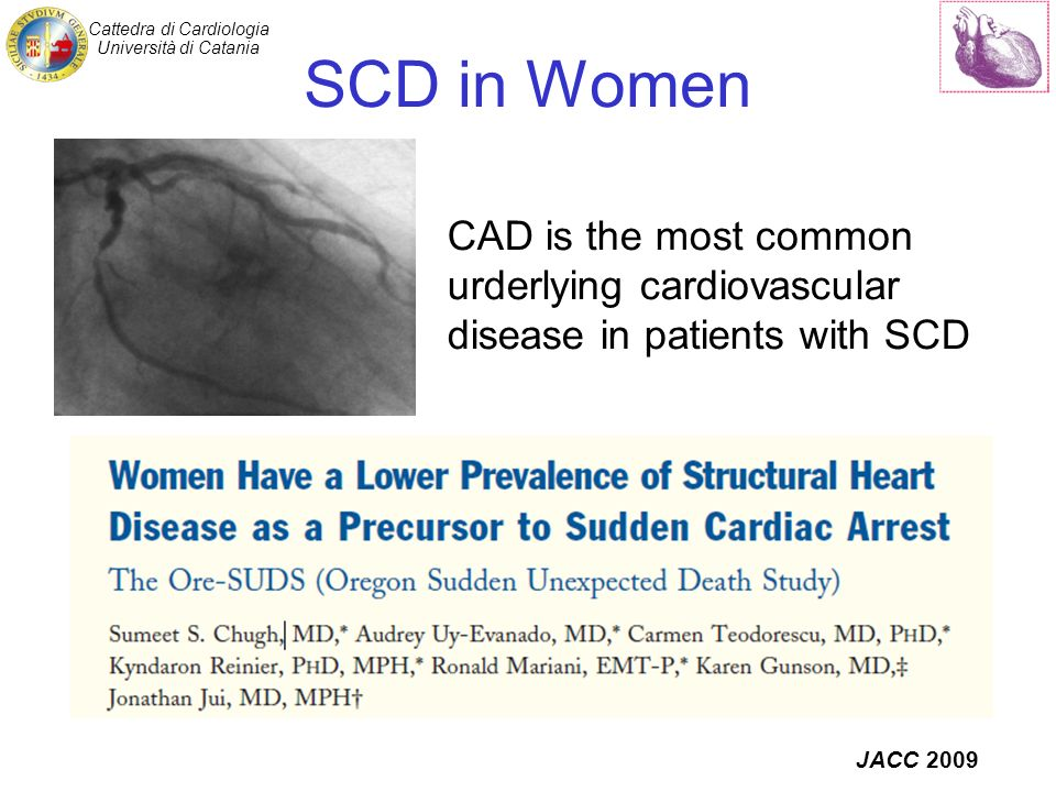 Cattedra di Cardiologia Università di Catania SCD in Women JACC 2009 CAD is the most common urderlying cardiovascular disease in patients with SCD