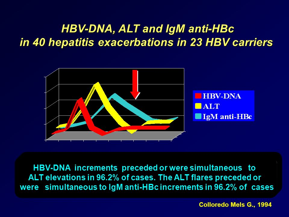 HBV-DNA, ALT and IgM anti-HBc in 40 hepatitis exacerbations in 23 HBV carriers HBV-DNA increments preceded or were simultaneous to ALT elevations in 9