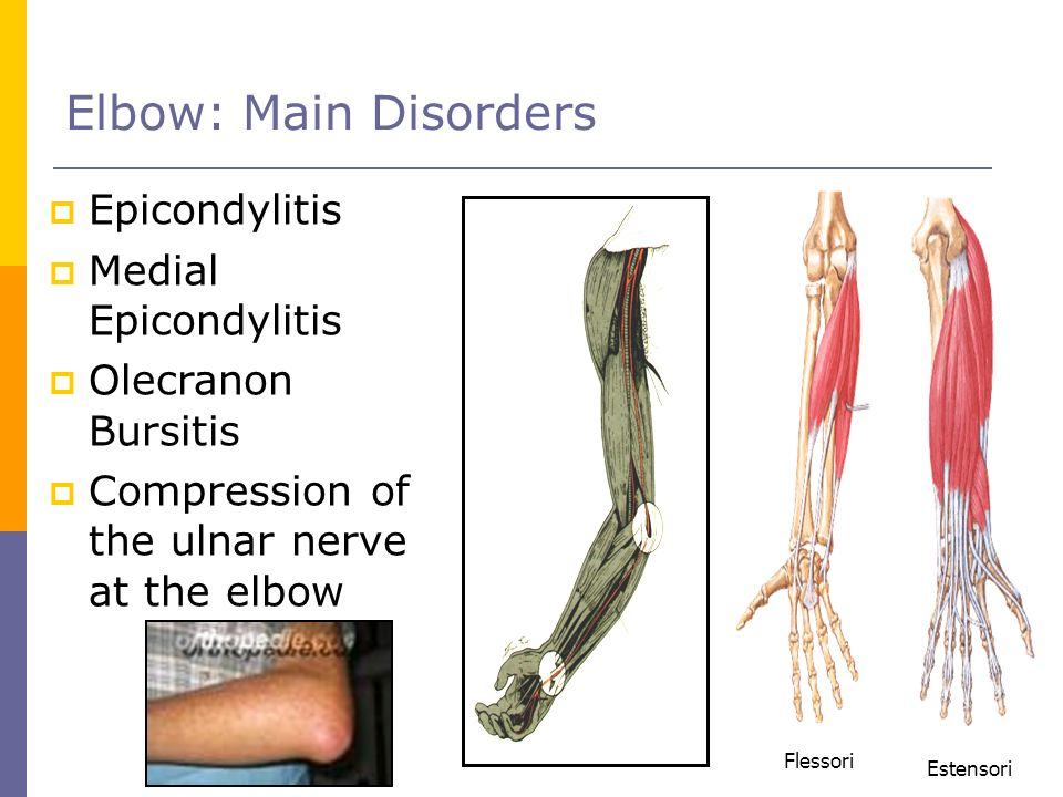 Epicondylitis Medial Epicondylitis Olecranon Bursitis Compression of the ulnar nerve at the elbow Elbow: Main Disorders Estensori Flessori