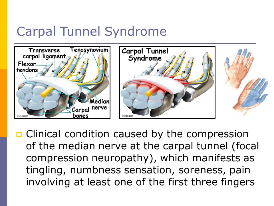 Carpal Tunnel Syndrome Clinical condition caused by the compression of the median nerve at the carpal tunnel (focal compression neuropathy), which man