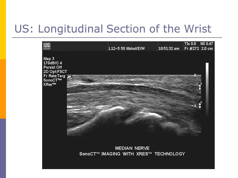 US: Longitudinal Section of the Wrist