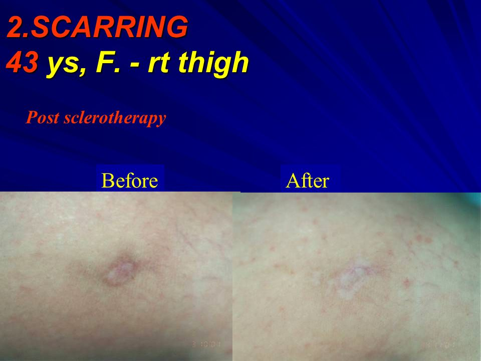 2.SCARRING 43 ys, F. - rt thigh Post sclerotherapy BeforeAfter