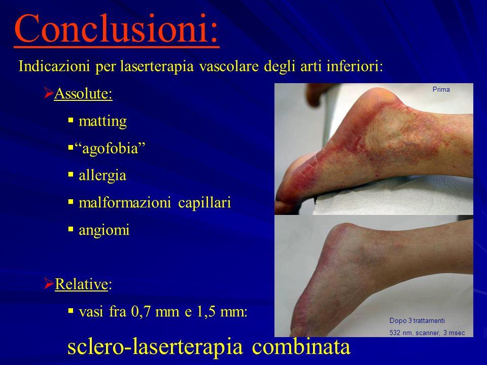 Indicazioni per laserterapia vascolare degli arti inferiori: Assolute: matting agofobia allergia malformazioni capillari angiomi Relative: vasi fra 0,