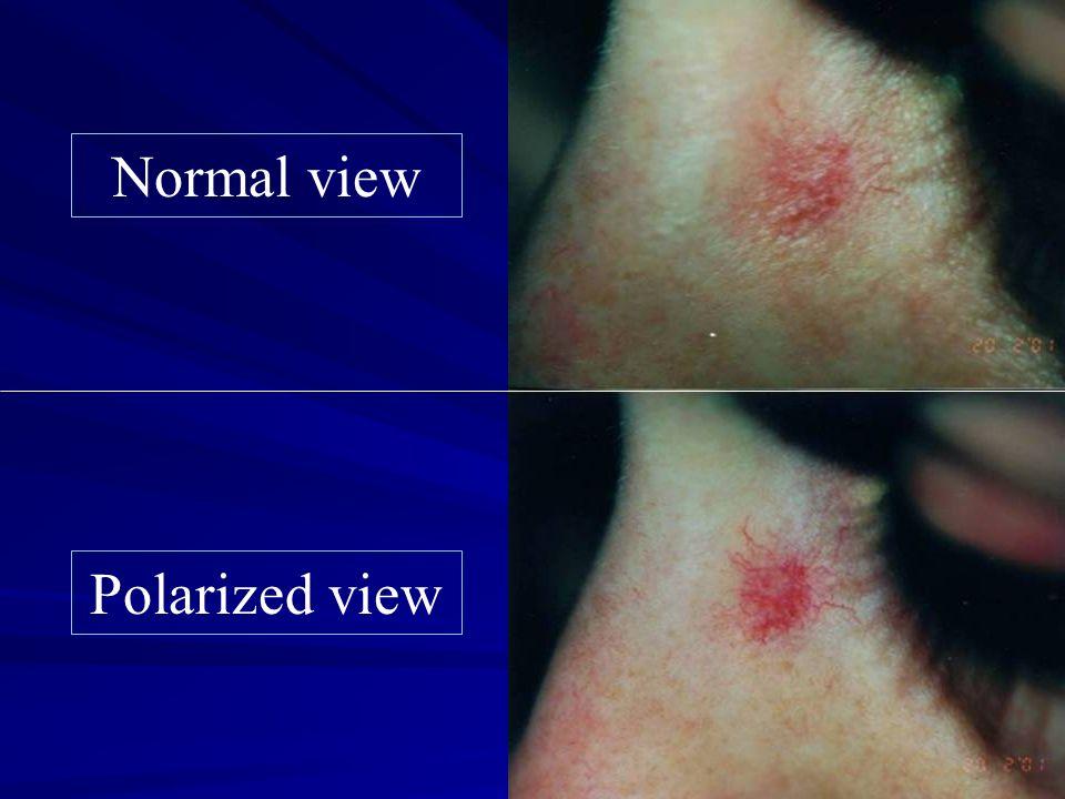 Teleangectasie degli arti inferiori: principi di laser-Tx Inquadramento flebologico Scleroterapia dei vasi iniettabili Prevenzione (Reflusso, abuso di UV, moto, calze) Visione (luce polarizzata) Raffreddamento cutaneo