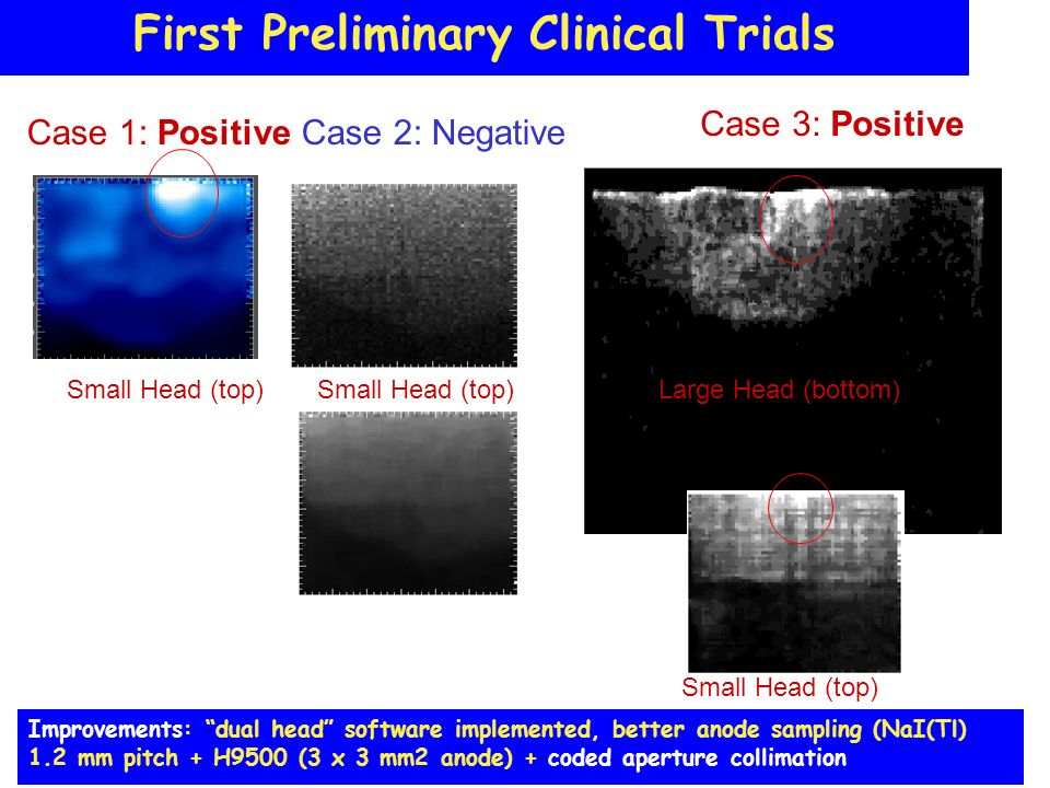 First Preliminary Clinical Trials Case 1: Positive Case 3: Positive Small Head (top)Large Head (bottom) Case 2: Negative Small Head (top) Improvements: dual head software implemented, better anode sampling (NaI(Tl) 1.2 mm pitch + H9500 (3 x 3 mm2 anode) + coded aperture collimation