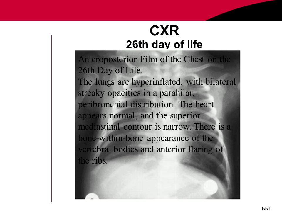 Seite 11 CXR 26th day of life Anteroposterior Film of the Chest on the 26th Day of Life.