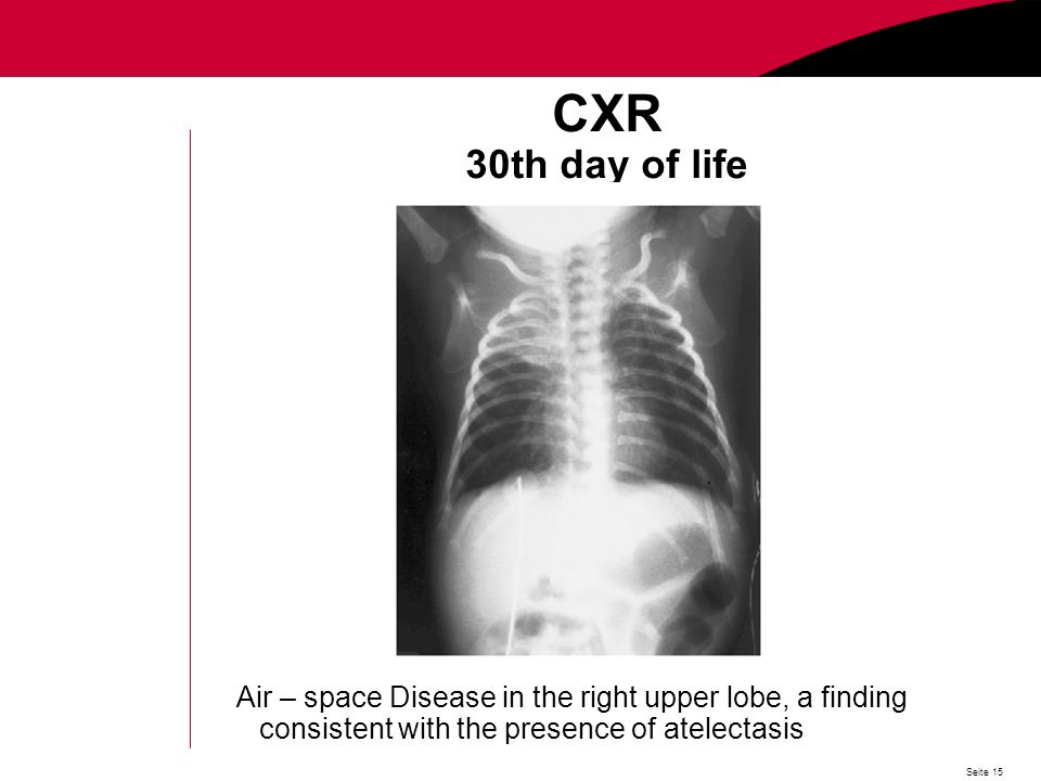 Seite 15 CXR 30th day of life Air – space Disease in the right upper lobe, a finding consistent with the presence of atelectasis