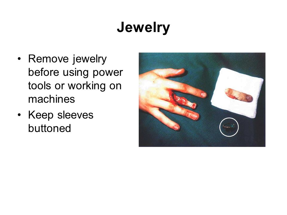 Jewelry Remove jewelry before using power tools or working on machines Keep sleeves buttoned