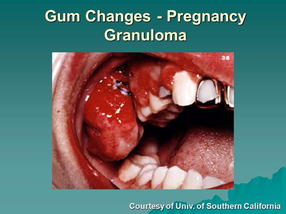 Gum Changes - Pregnancy Granuloma Courtesy of Univ. of Southern California
