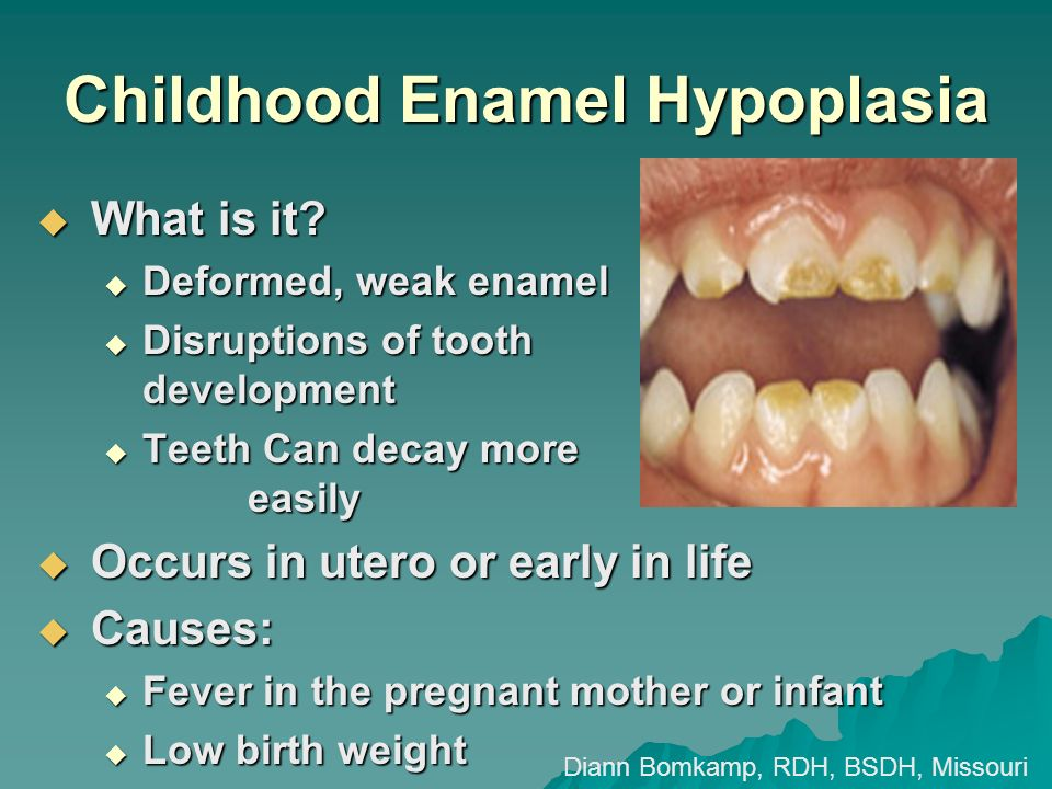 Childhood Enamel Hypoplasia What is it? What is it? Deformed, weak enamel Deformed, weak enamel Disruptions of tooth development Disruptions of tooth