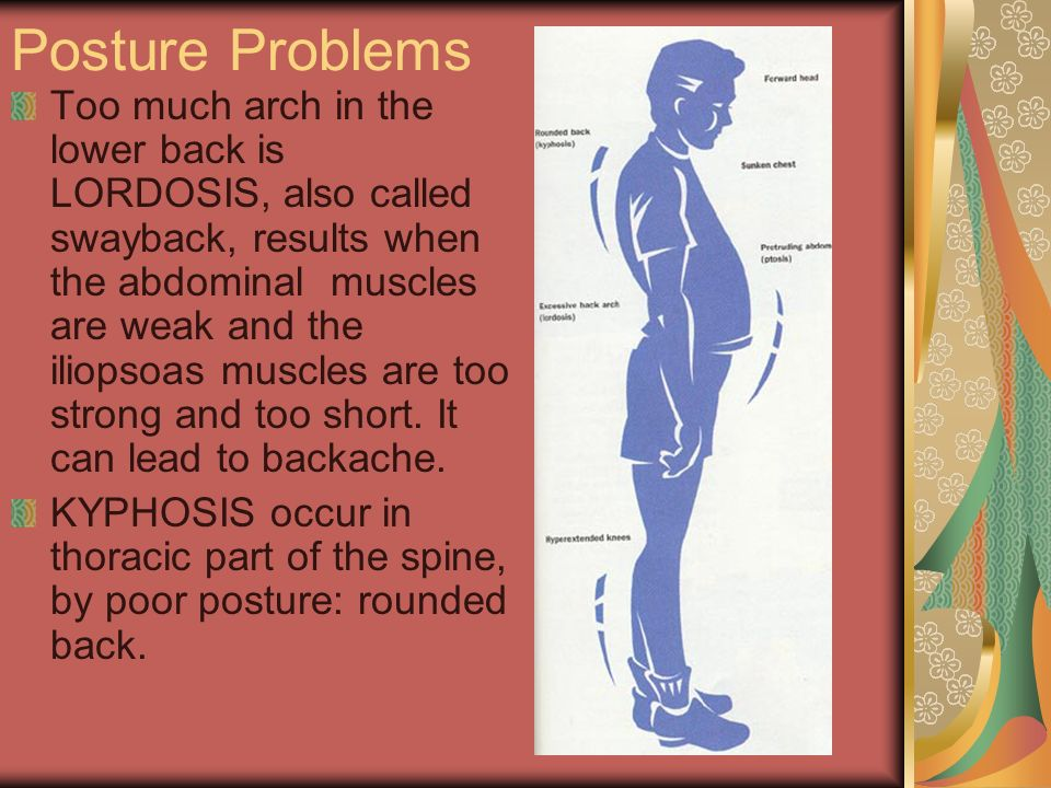 Posture Problems Too much arch in the lower back is LORDOSIS, also called swayback, results when the abdominal muscles are weak and the iliopsoas musc