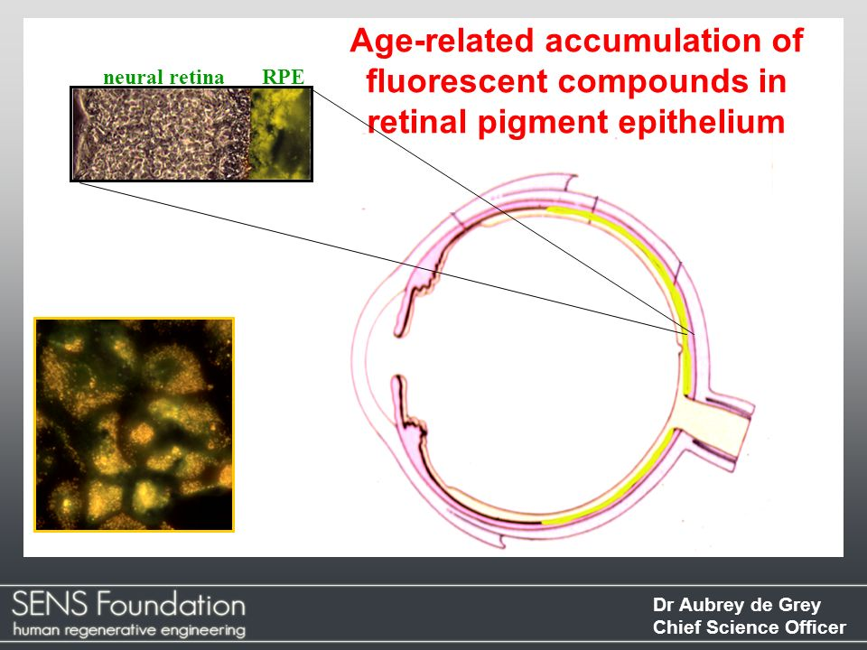 Dr Aubrey de Grey Chief Science Officer Age-related accumulation of fluorescent compounds in retinal pigment epithelium neural retinaRPE