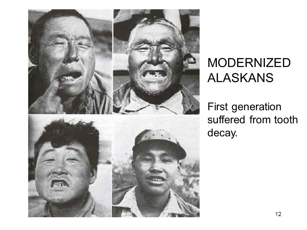 Eskimo Decay MODERNIZED ALASKANS First generation suffered from tooth decay. 12