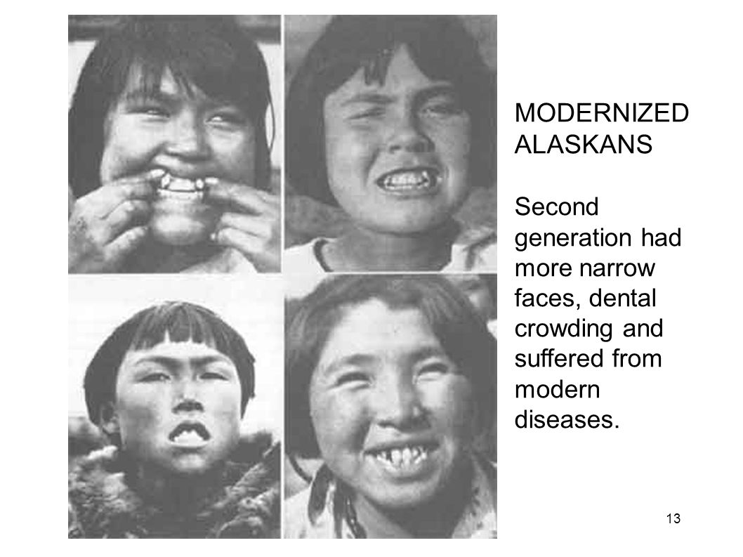 1 st Gen Eskimos MODERNIZED ALASKANS Second generation had more narrow faces, dental crowding and suffered from modern diseases. 13