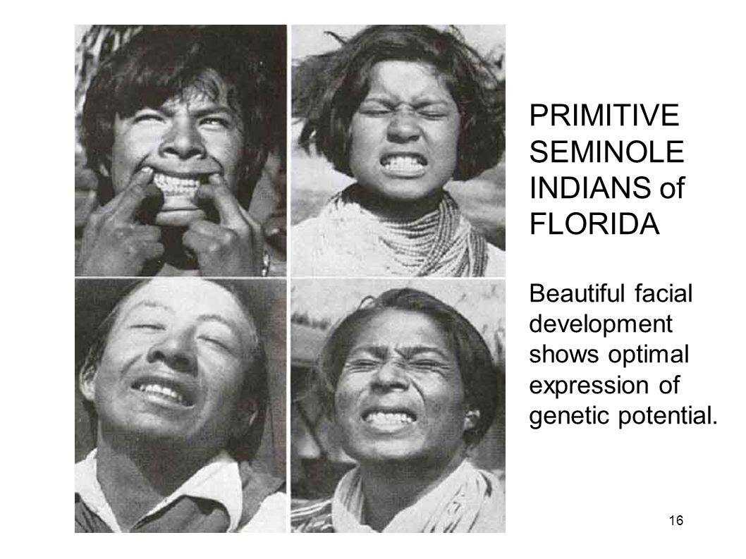 Primitive Seminoles PRIMITIVE SEMINOLE INDIANS of FLORIDA Beautiful facial development shows optimal expression of genetic potential. 16