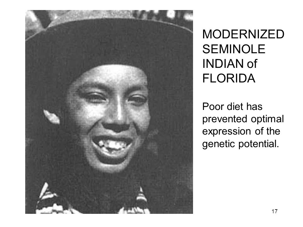 MODERNIZED SEMINOLE INDIAN of FLORIDA Poor diet has prevented optimal expression of the genetic potential. 17