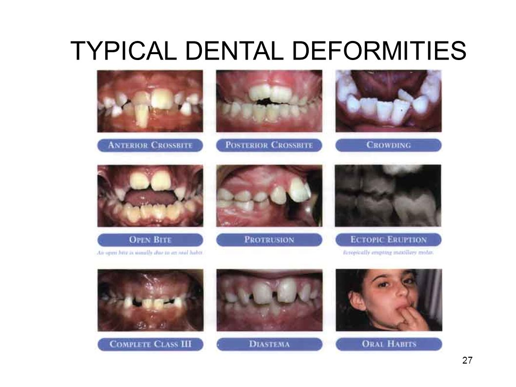 TYPICAL DENTAL DEFORMITIES 27