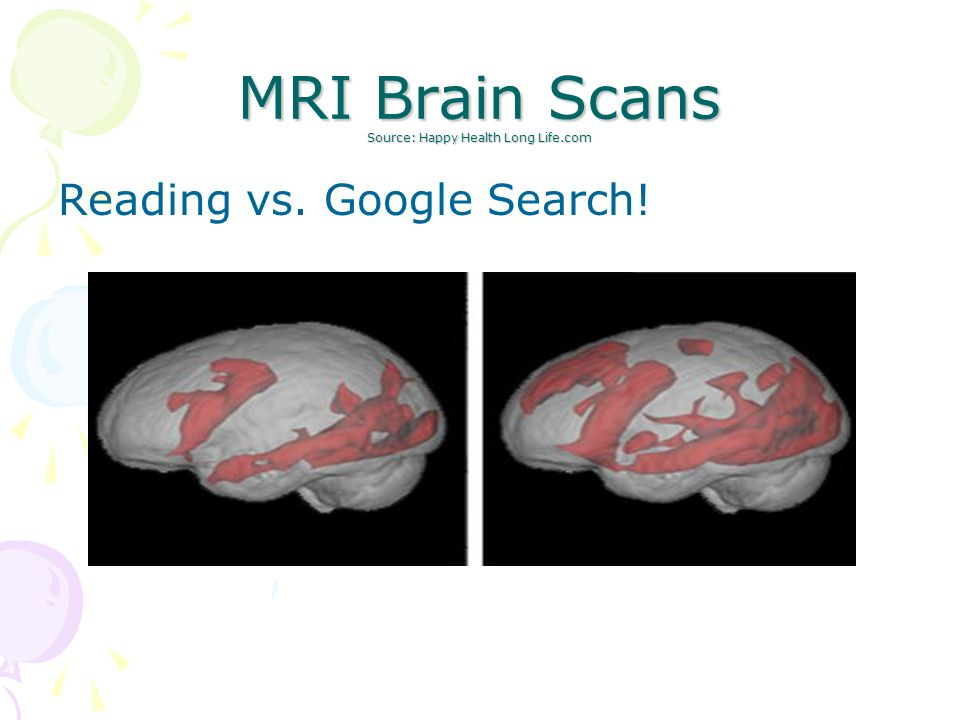 MRI Brain Scans Source: Happy Health Long Life.com Reading vs. Google Search!