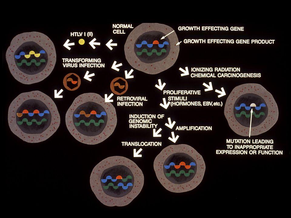 Adenoma Carcinoma Sequence Normal Early Intermediate Advanced Cancer Mucosa Adenoma Adenoma Adenoma 5-20 yrs5-15 yrs APC, bcl -2, c- myc, Hypomethylation, ß-catenin K-ras SMAD 2, SMAD 4 p53 MSH2,MLH1, MSH6,PMS1,PMS2 Adapted from Ilyas et al.