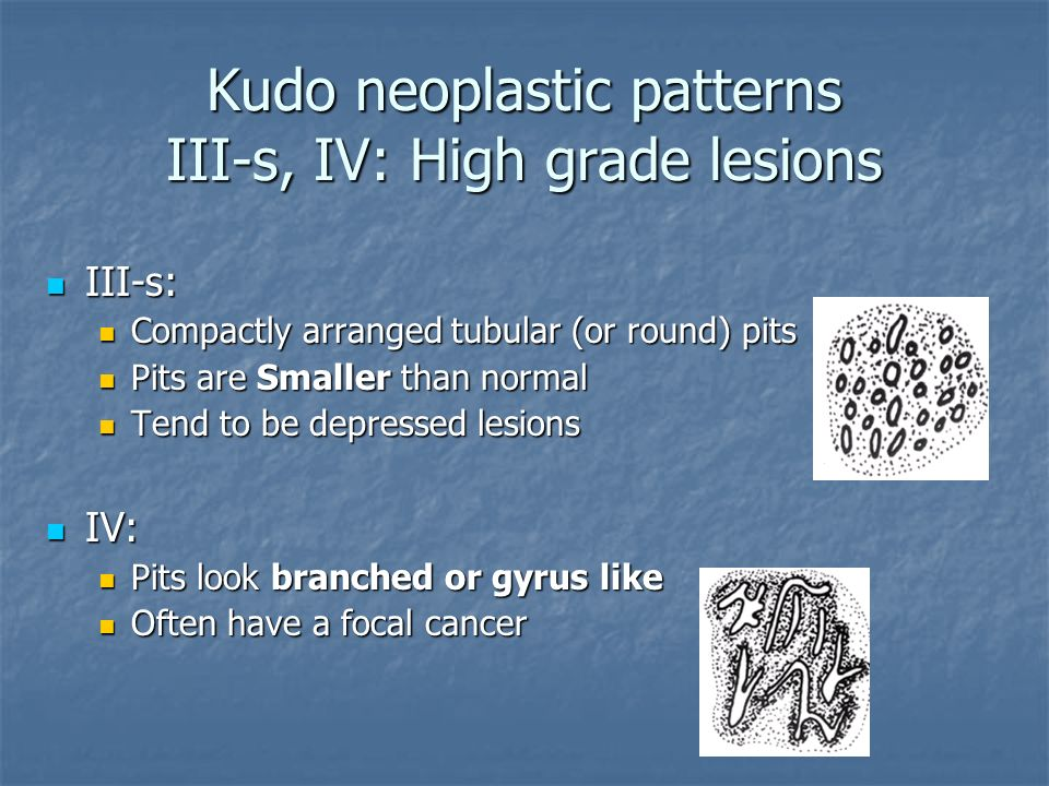Kudo neoplastic patterns III-s, IV: High grade lesions III-s: III-s: Compactly arranged tubular (or round) pits Compactly arranged tubular (or round)
