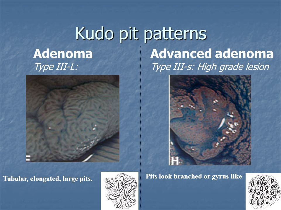 Adenoma Type III-L: Advanced adenoma Type III-s: High grade lesion Tubular, elongated, large pits. Pits look branched or gyrus like Kudo pit patterns
