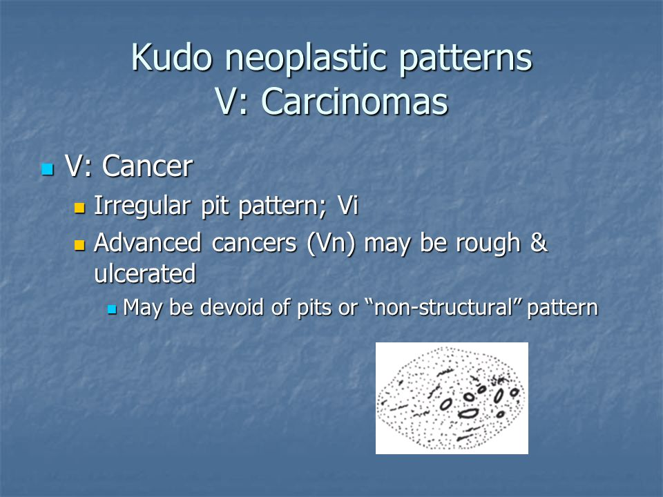 Kudo neoplastic patterns V: Carcinomas V: Cancer V: Cancer Irregular pit pattern; Vi Irregular pit pattern; Vi Advanced cancers (Vn) may be rough & ul