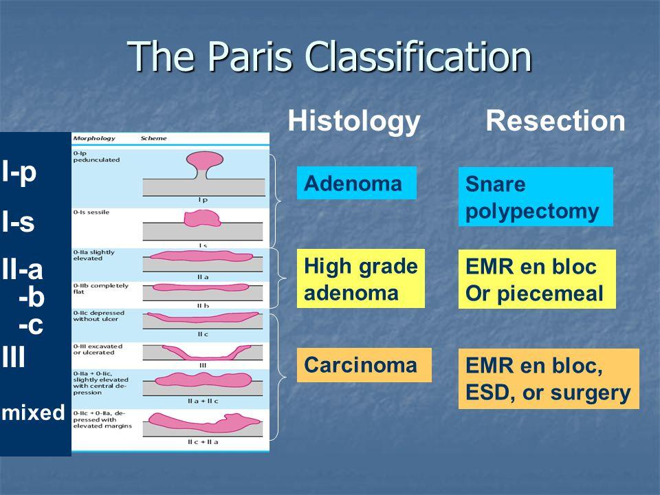 Paris Classification I-p (pedunculated) I-s (sessile) II-a (flat elevated) II-b (flat flat) III (flat ulcerated) IIc (flat depressed)